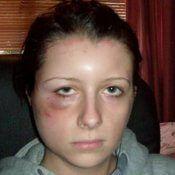 Алергія на фарбу, симптоми і лікування