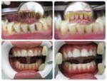 Професійна гігієна порожнини рота